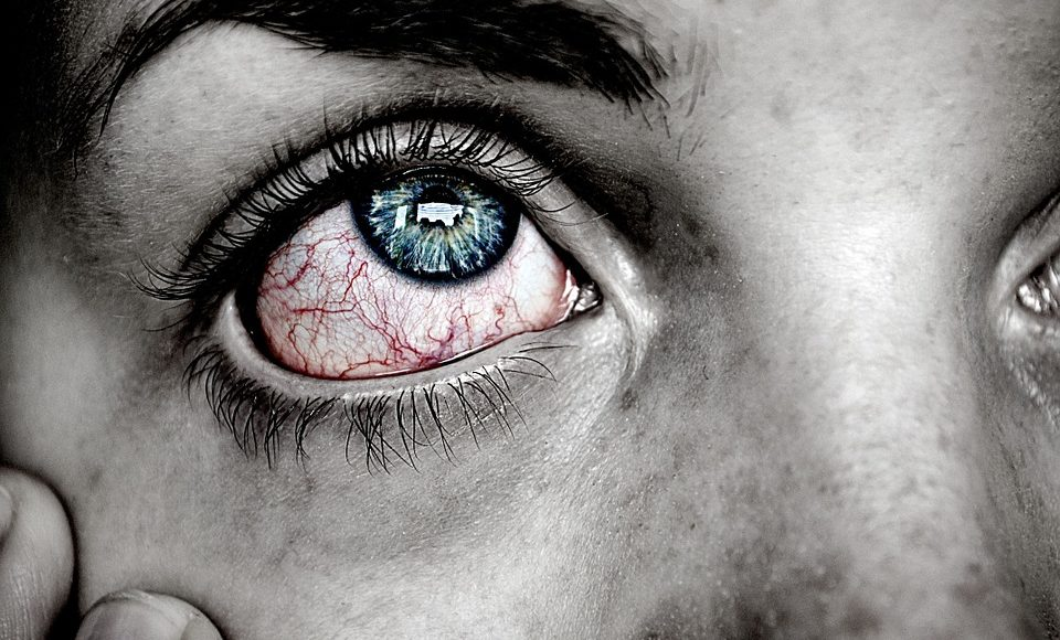 Everything You Need to Know About: Pink Eye